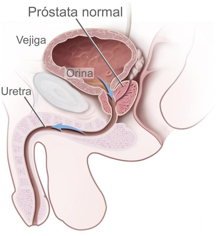 día masaje masaje de próstata
